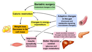 This image has an empty alt attribute; its file name is Bariatric-surgery-300x169.jpg